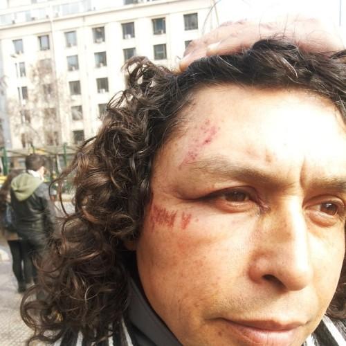 Fernando Caniuyán, delegado Fenapo MPL San Joaquín, luego de la golpiza policial en La Moneda.